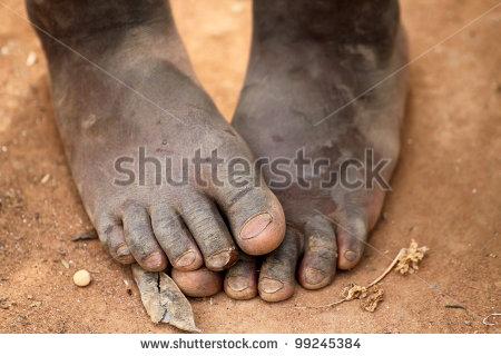 stock-photo-feet-99245384